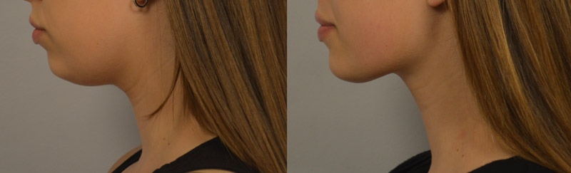 liposuction-of-the-neck