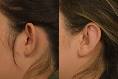 otoplasty-before-after-1