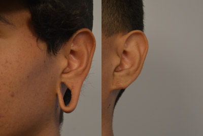 otoplasty-before-after-2