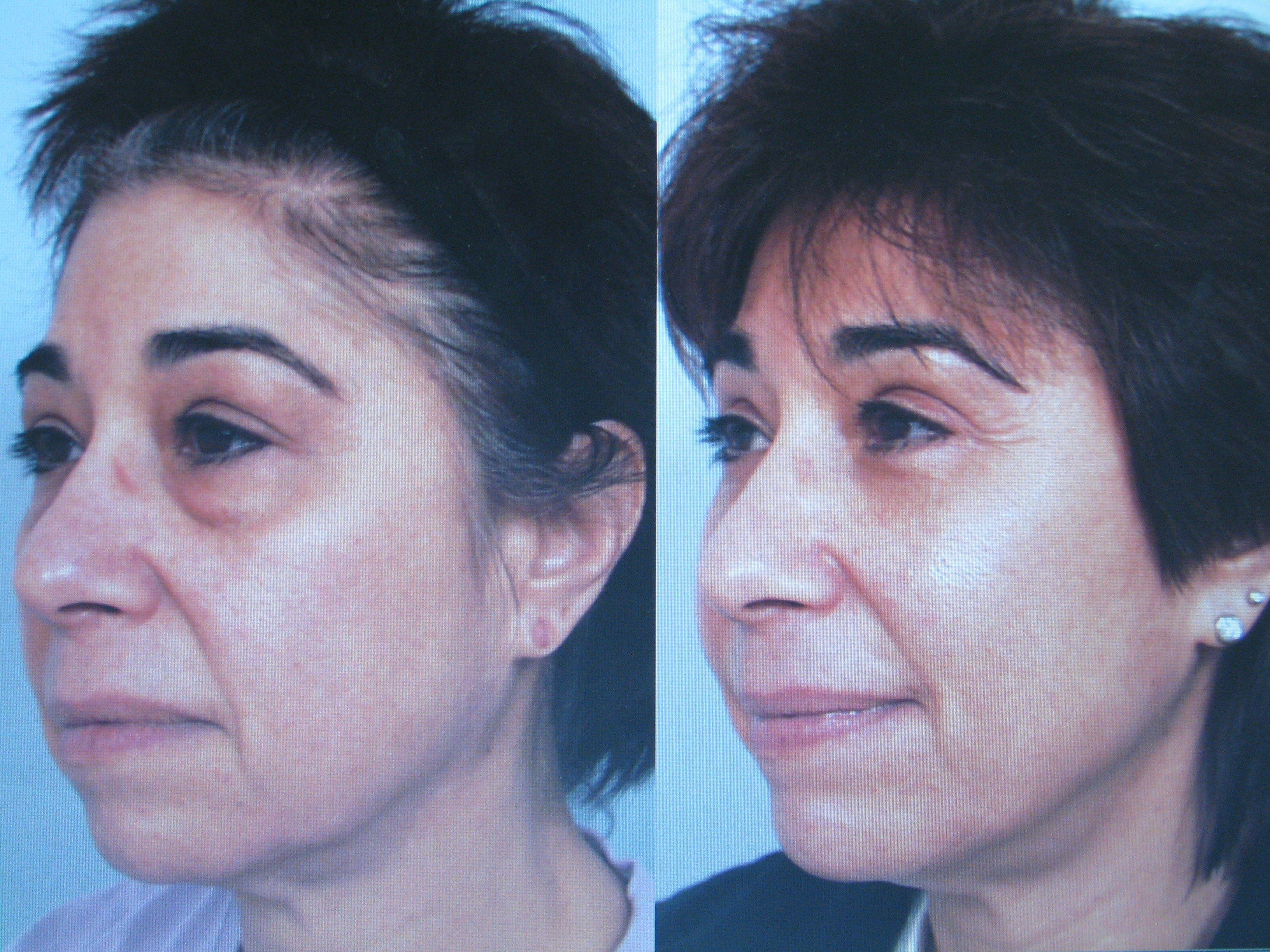 Sculptra in Beverly Hills, Los Angeles, Brentwood, Santa Monica