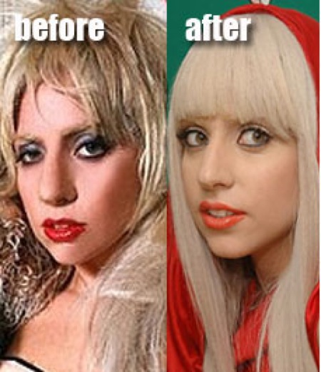 The Lady Gaga Rhinoplasty | Dr  Michael Persky