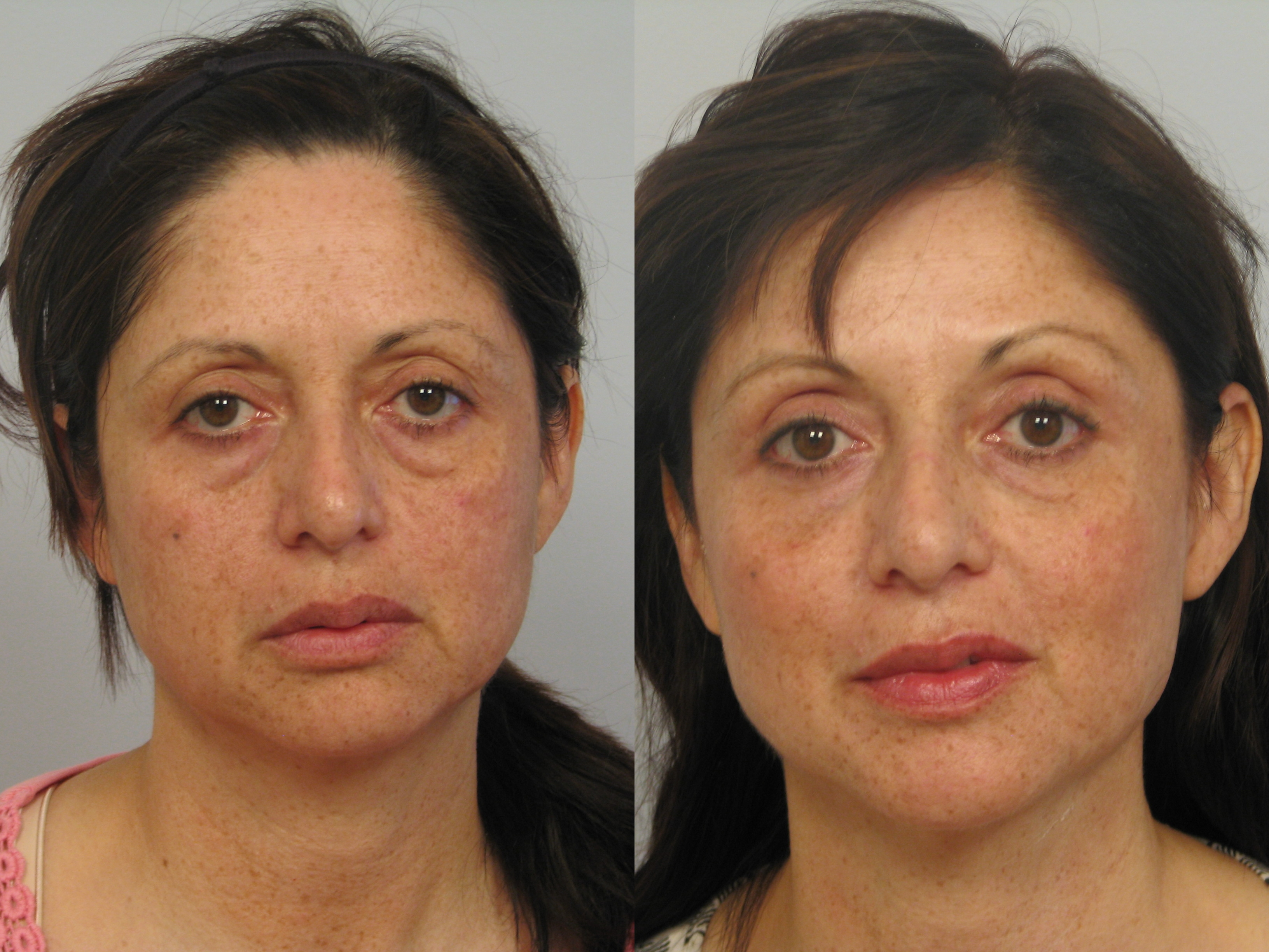 face lift dr persky page 3 ulthera