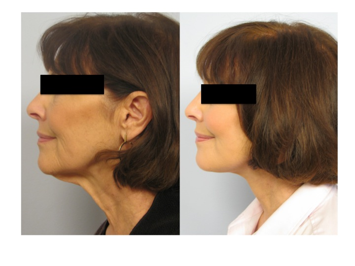 """Ultherapy (Ulthera) 2012 Update: """"Doc, Will Ultherapy Work ..."""