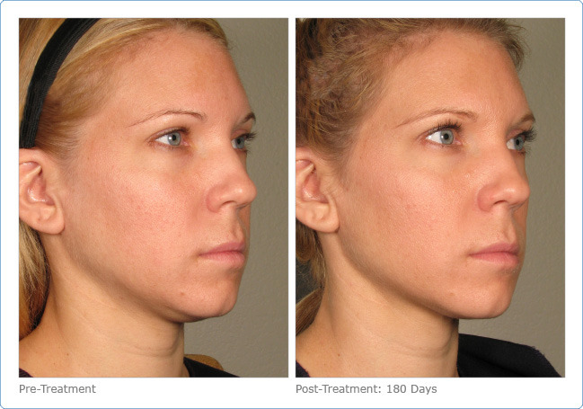Does Ultherapy Really Turn Back Time Review Amp Cost Of