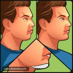 chin implants - los angeles