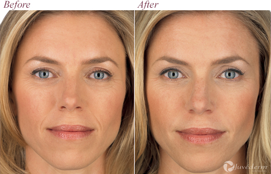 Juvederm Voluma Xc Frequently Asked Questions Look Your