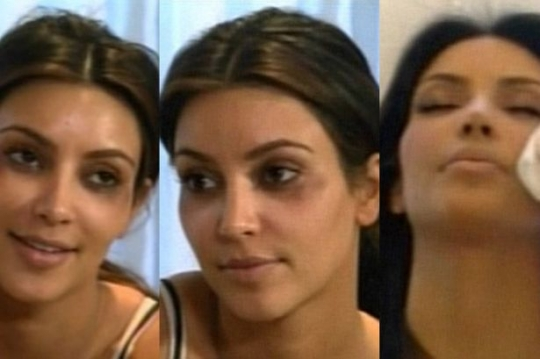 Kim Kardashian's bruises after Botox injections