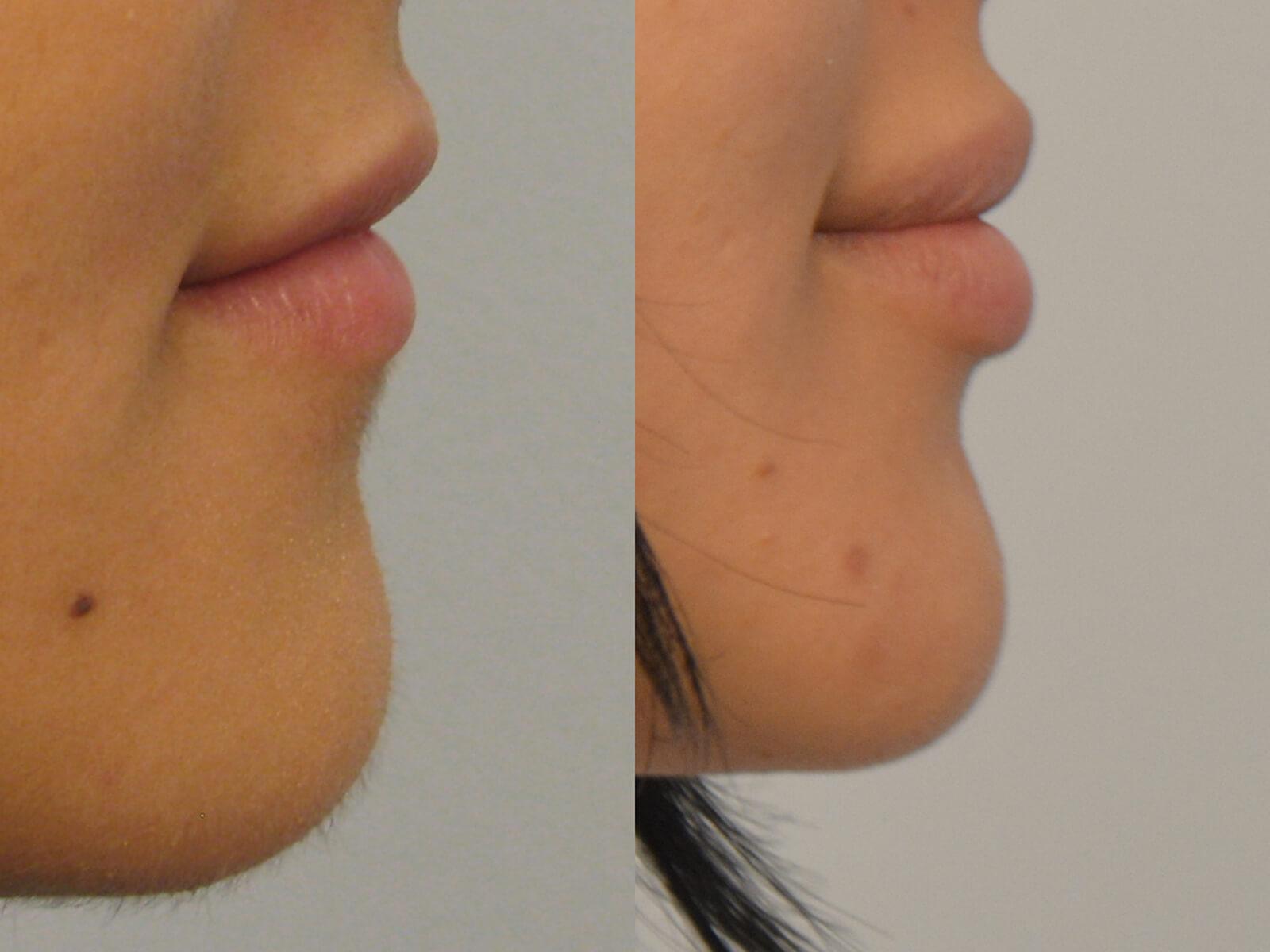 Lip Aug