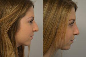 Rhinoplasty Patient 5 - Persky
