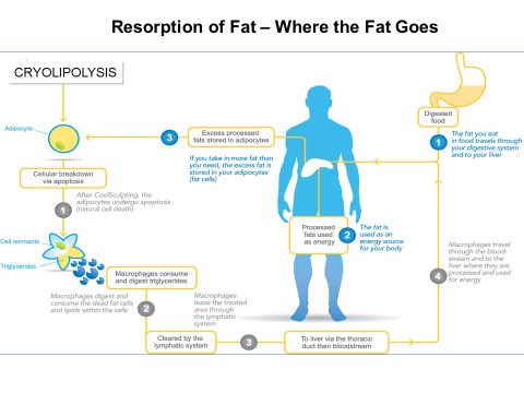 Where the fat goes