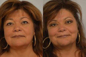 Blepharoplasty Patient 3 Before and After Picture