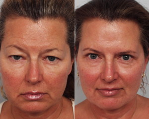 Before and after image showing the results of an eyelid lift performed in Encino, CA.