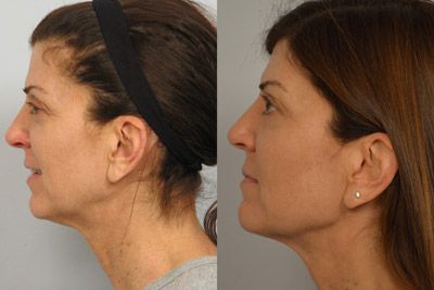 Ultherapy Patient