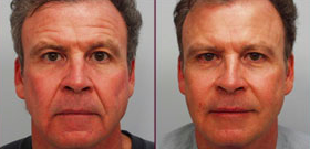 BOTOX® Cosmetic Before and After Results on Man