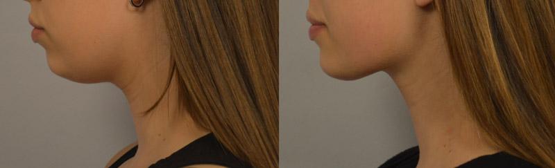 lipo-neck-patient-Persky