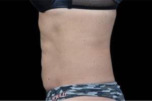 EMSCULPT® Tummy After
