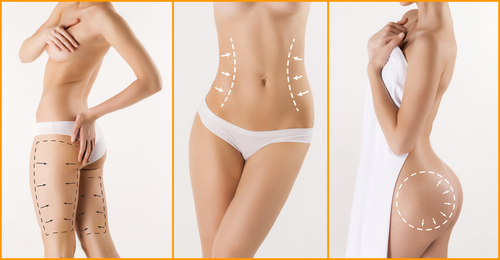 body correction with the help of plastic surgery-img-blog
