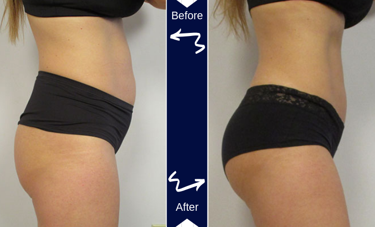 Before and after photo of woman butt and stomach