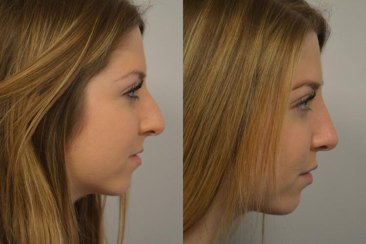 Rhinoplasty-patient